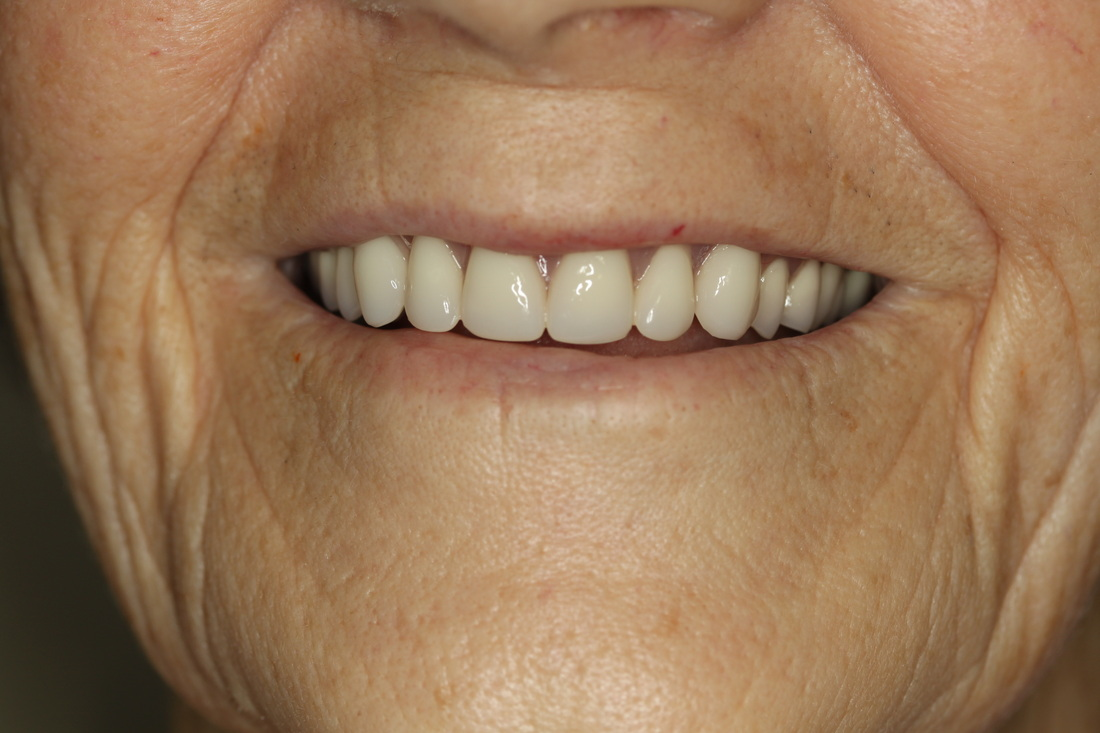 Implant Supported Dentures Ottawa